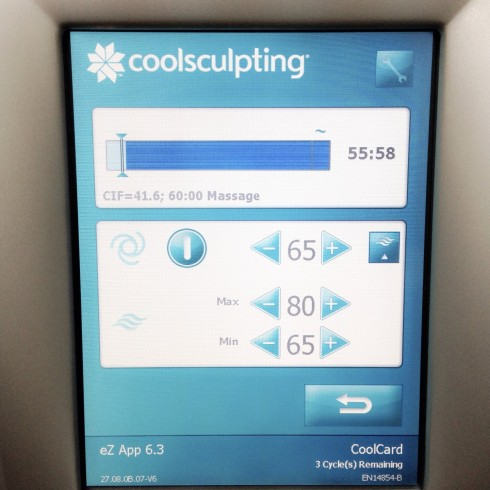 zeltiq coolsculpting machine monitor