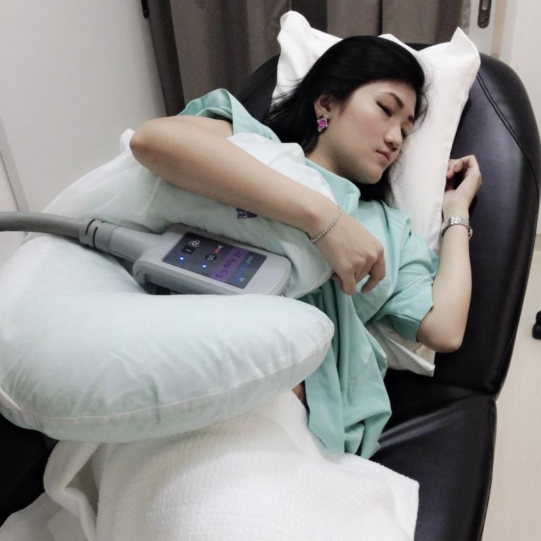 girl sleeping coolsculpting