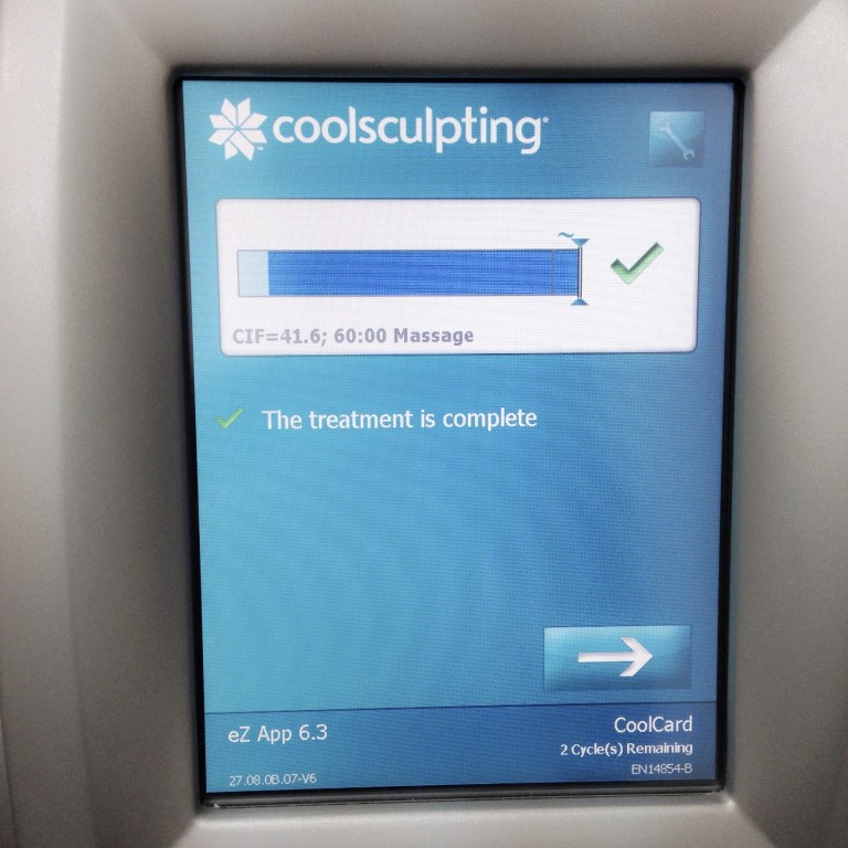 coolsculpting treatment completed