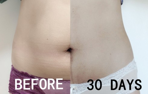 coolsculpting 30 days after treatment