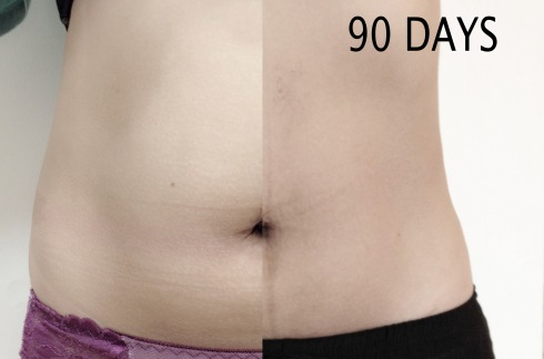 coolsculpting before after 90 days
