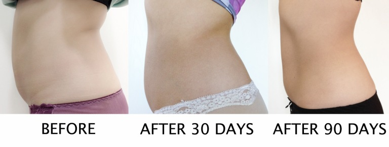 coolsculpting side view tummy