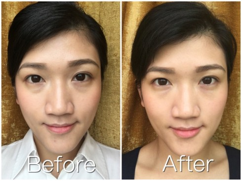 under eyes filler before after